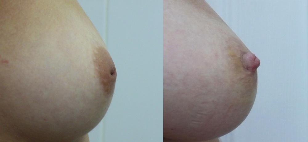 Фото сосков женской груди