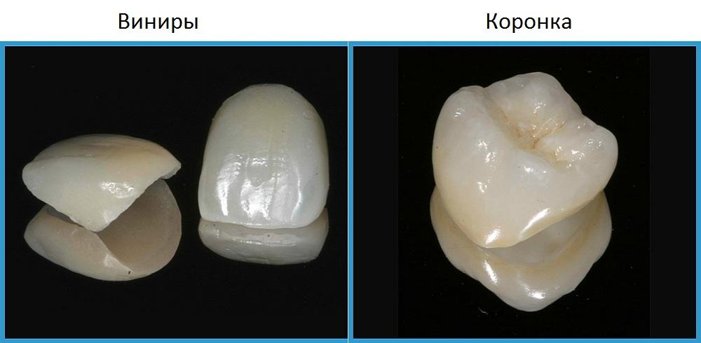 виниры пластины для зубов отзывы пациентов форум