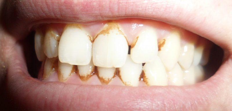 Зубная паста для удаления камней на зубах