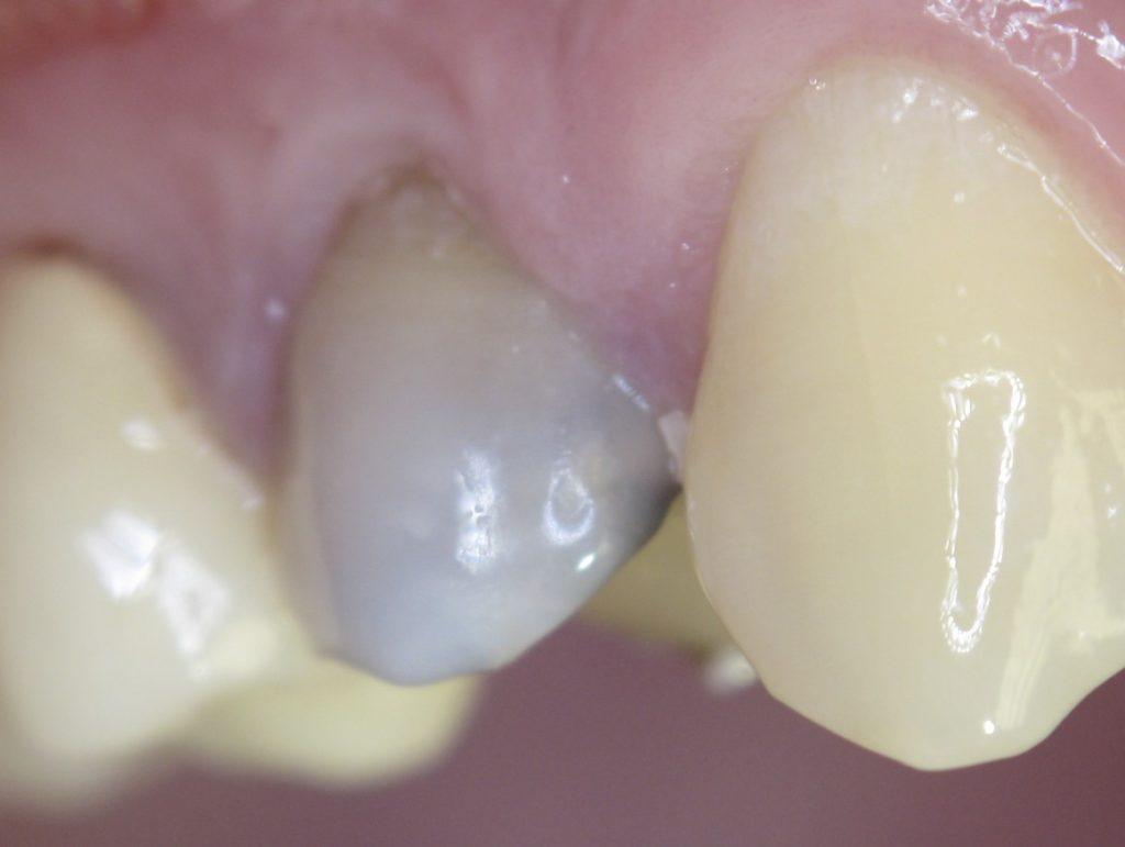 Чернеет зуб