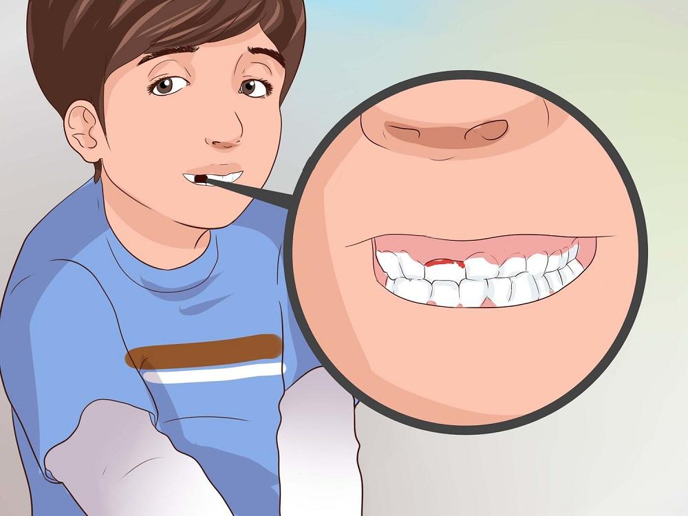 Кровоточит зуб