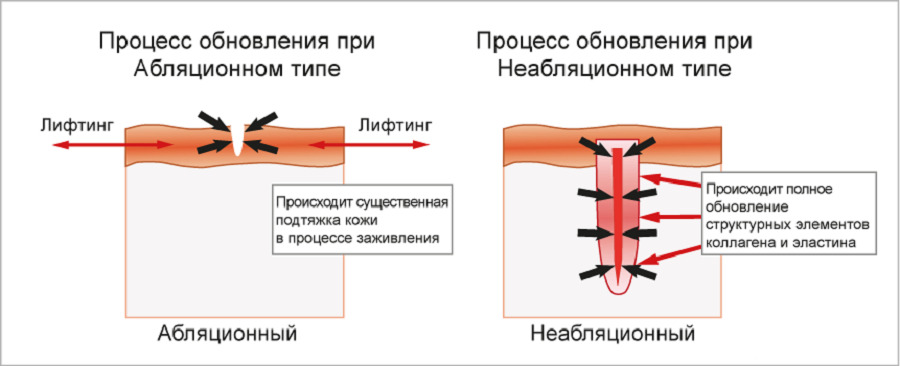Типы лазерного фракционного омоложения