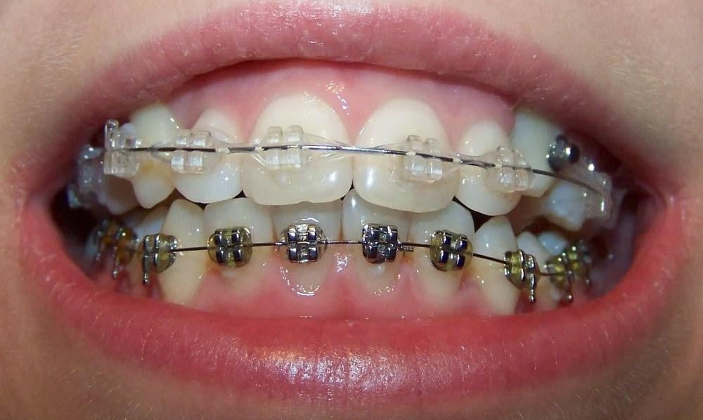 Исправление кривых зубов брекетами