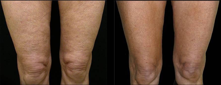 Подтяжка кожи на коленях