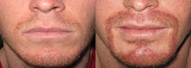 Имплантация усов