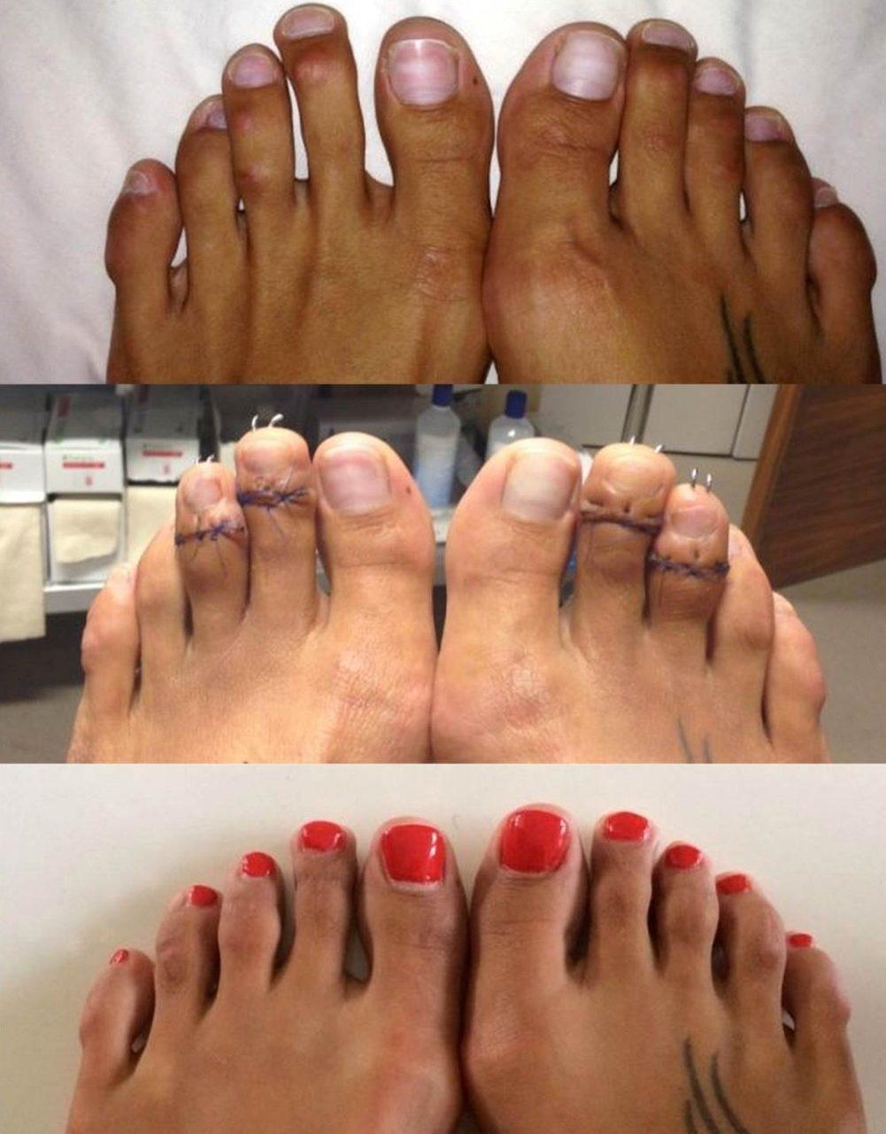 Подрезание пальцев ног