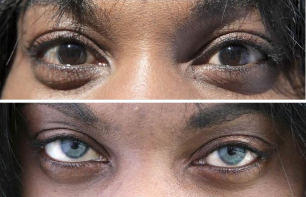 Смена цвета глаз