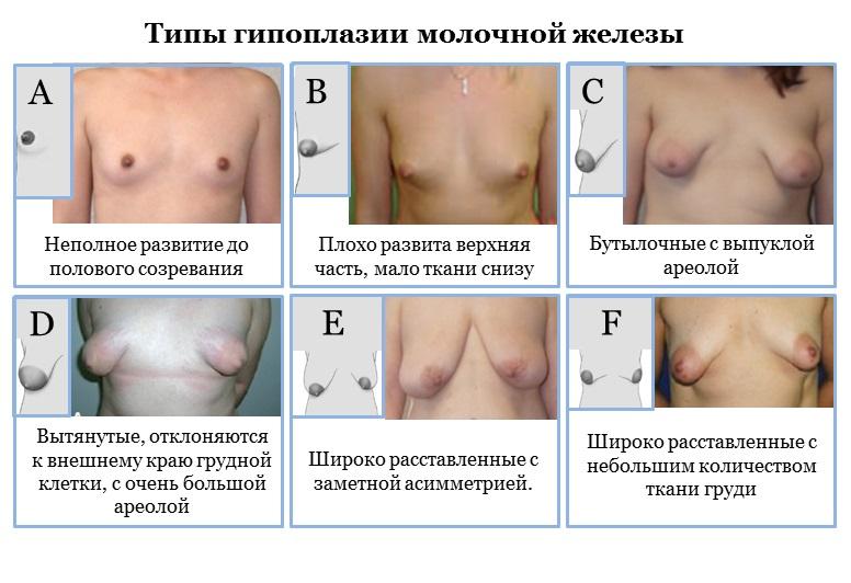 Типы гипоплазии молочной железы
