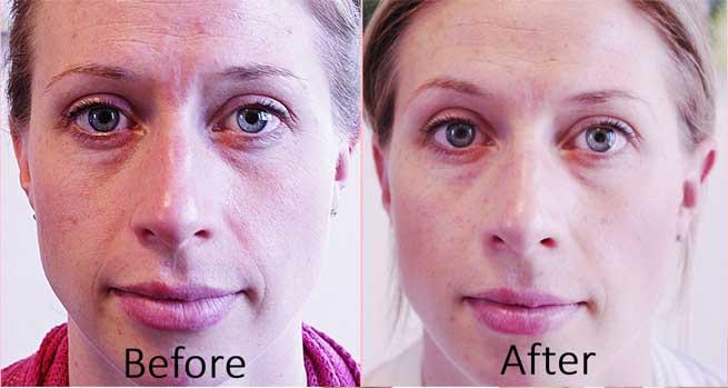 До и после точечного массажа