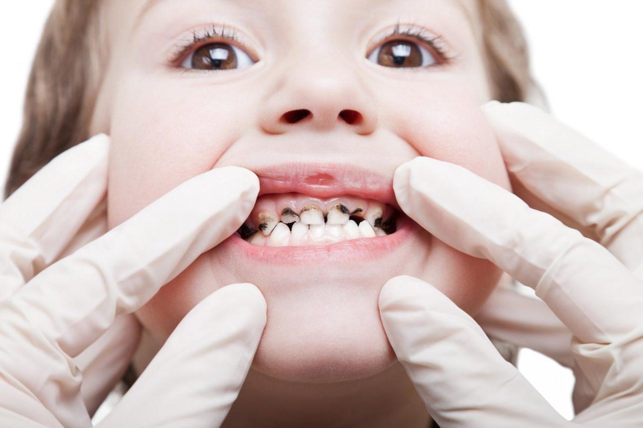 Молочные зубы все гниют