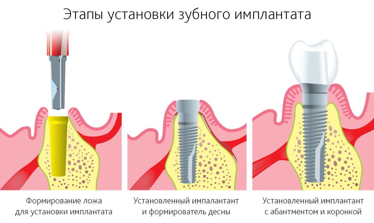 Имплант зуба срок установки